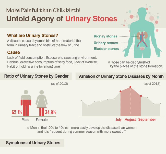[Infographic] More Painful than childbirth! Untold Agony of Uninary Stones