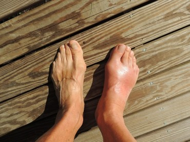 Middle-aged Men More Prone to Gout, and Significant Medical Costs