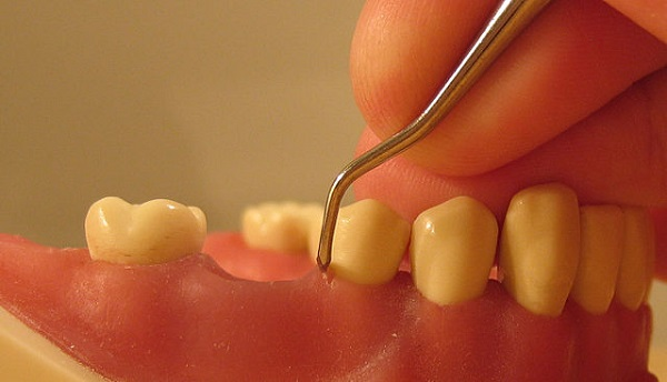 Periodontal Patient Numbers Rise Rapidly after Insurance Coverage of Scaling