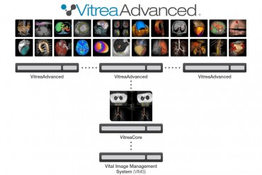 Vital Introduces Vitrea(R) Software, Version 6.7