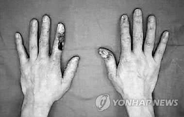 The affected orthopedist had performed more than 100 spinal injections per month for 17 years prior to the diagnosis. (image: Yonhap)