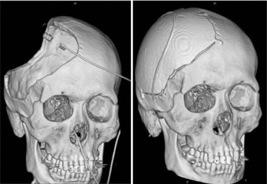 First Successful 3D Printed Skull Transplant in Gangwon-do