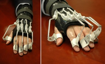 "Ambassador Lippert's Hand Splint Draws Attention with ""Robotic-looking"" Appearance"