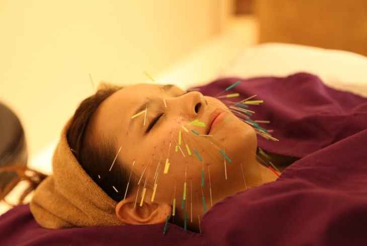 The team's acupuncture technique involves acupuncture needle points inserted into layers of the skin 0.5 to 2.0㎜ deep. (image: Kwangdong Hospital of Traditional Korean Medicine)