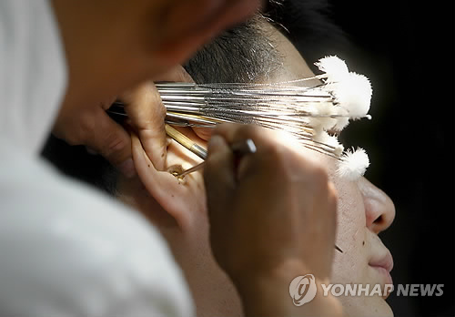 The number of individuals seeking treatment for ear-related diseases has reached around 6 million every year. (Image : Yonhap)