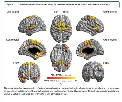 The study showed that the group with less than 12 years of education had a thinner cerebral cortex than the group with more than 12 years of education. (Image : Yonhap)