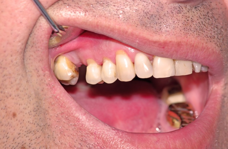 Periodontal Diseases Could Lead to Impotence