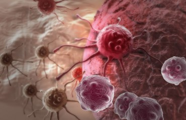 New Step Forward in Domestic Cancer Treatment