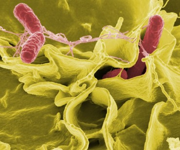 Bacteria Key to Treating Post-Traumatic Stress Disorder?