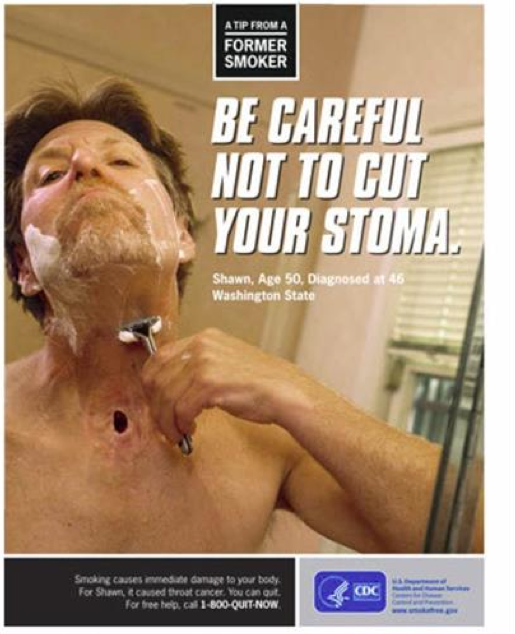 Wright, who began smoking when he was 14 years old, and continued the smoking habit into his mid-40's, now lives with a stoma (opening) and a laryngeal implant after being diagnosed with throat cancer. (Image Provided by Ministry of Health and Welfare)