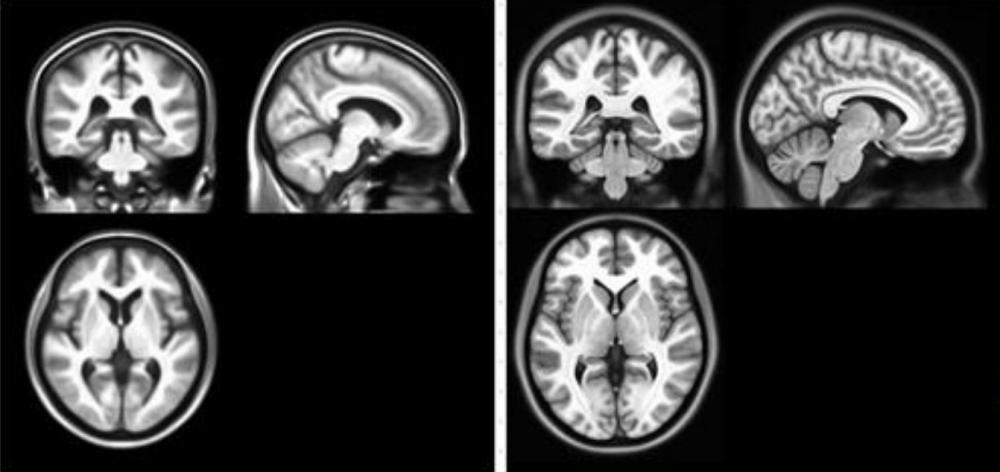 Korean Researchers Develop Standard Brain Image Model for Korean Elderly