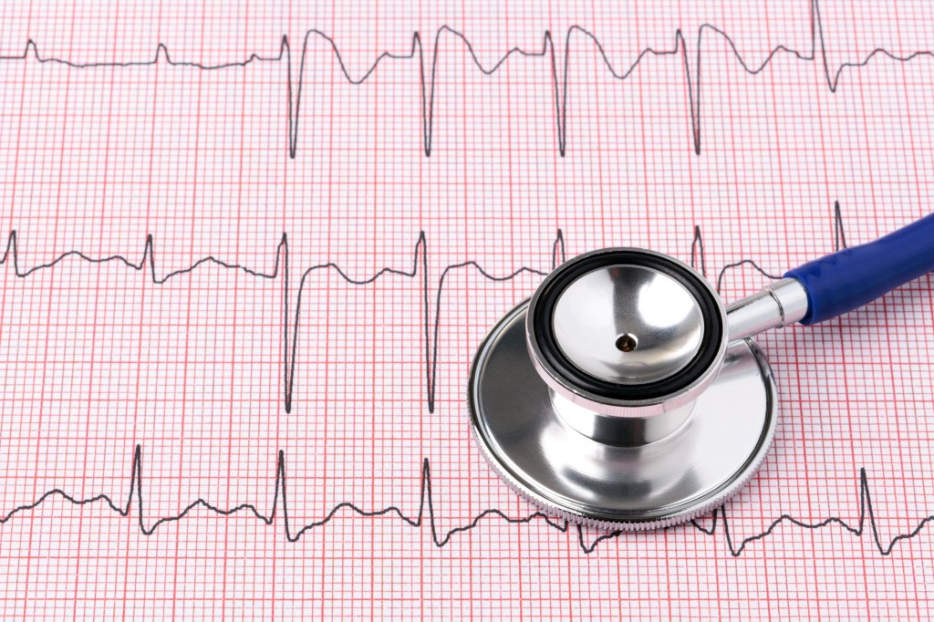 "The results showed that patients in group C, the shortest of the groups, had a significantly higher rate of heart failure or ""cardiac insufficiency."" (image: KobizMedia/ Korea Bizwire)"