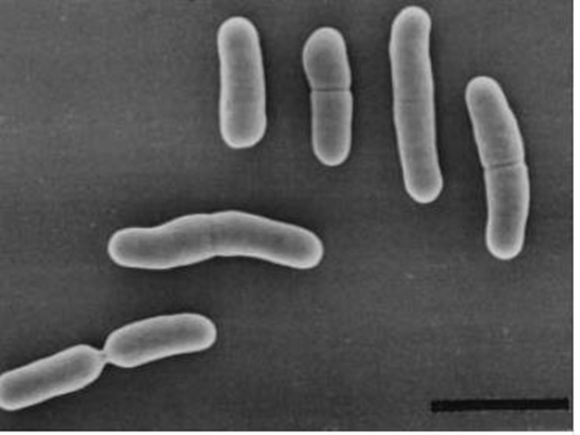 "This image, provided by the World Institute of Kimchi on April 12, 2017, shows lactic acid bacteria from kimchi, known as ""Weissella cibaria WIKIM28."" (Image: Yonhap)"