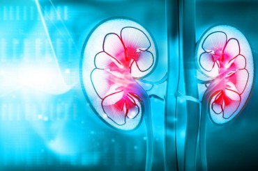Mismatched Kidney Transplants Between Married Couples Increase