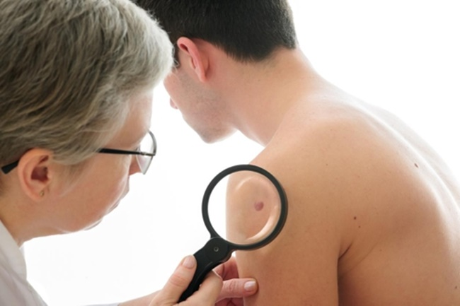 Skin cancer patients in the country numbered 19,435 at the end of last year, up 38 percent from four years earlier, according to the data from the Health Insurance Review & Assessment Service. (Image: Yonhap)