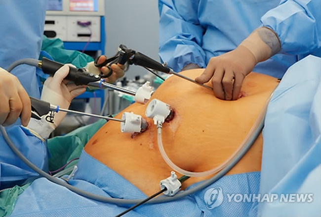 The South Korean government has decided to extend its national insurance coverage to patients with obesity starting next year. (Image: Yonhap)