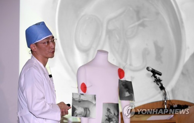 "On November 15, professor Lee Kook-jong said while explaining the two surgeries administered to the North Korean, ""Within his ruptured small intestine, we discovered dozens of adult parasitic worms, some as long as 27cm long, making it likely that they are roundworms."" (Image: Yonhap)"