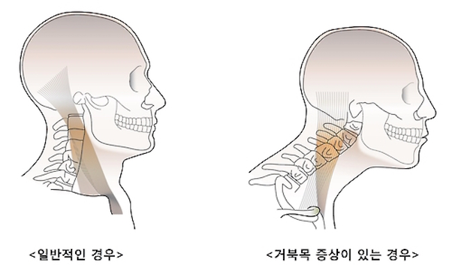 According to the National Health Insurance Service, from 2011 to 2016 the number of individuals diagnosed with forward head posture went up from 2.4 million to 2.7 million, an increase of around 300,000 in only five years. (Image: Yonhap)