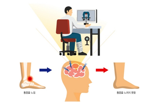 South Korean Researchers Fuse Virtual Reality and Mirror Therapy