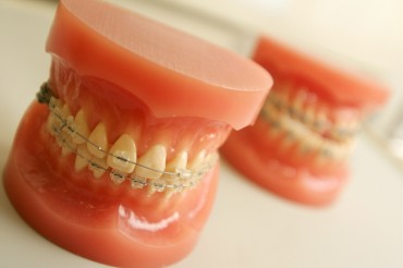 Orthodontics Treatment Increasing Among Middle-aged S. Koreans