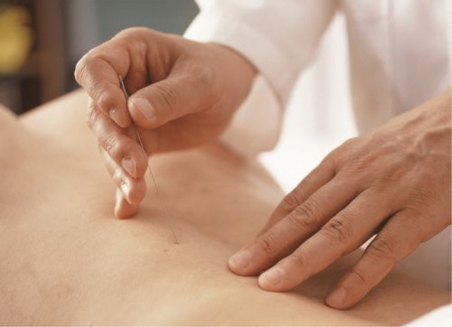 No Adverse Effects on Delivery When Receiving Acupuncture During Pregnancy