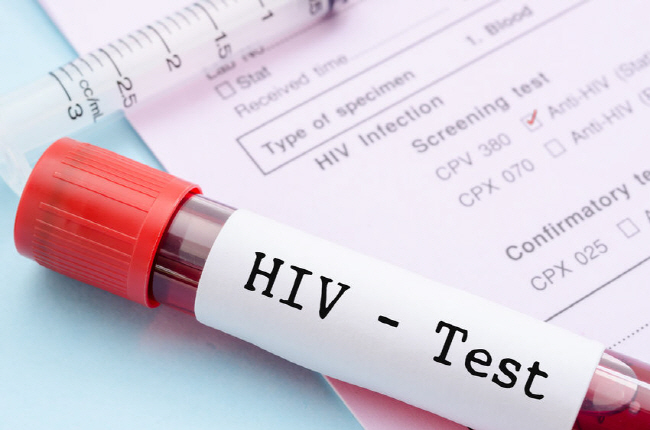 South Korea had the second lowest AIDS cases and HIV infections rates among Organization for Economic Cooperation and Development (OECD) as of 2017. (image: Korea Bizwire)
