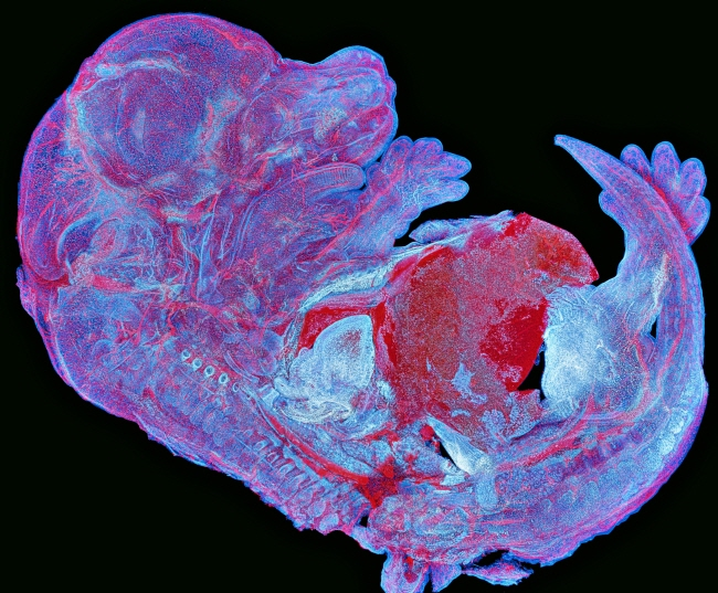 Asia-Pacific regional winner Howard Vindin, autofluorescence image of a mouse embryo. (image: Olympus)