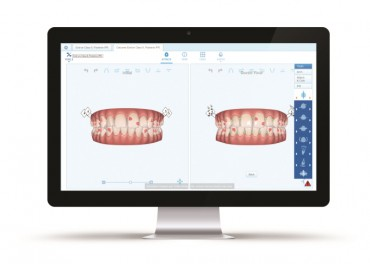 Align Technology Announces Invisalign® G8 with New Smartforce® Aligner Activation Features