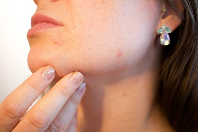 Thin and Transparent Thermal Patch Developed to Cure Acne
