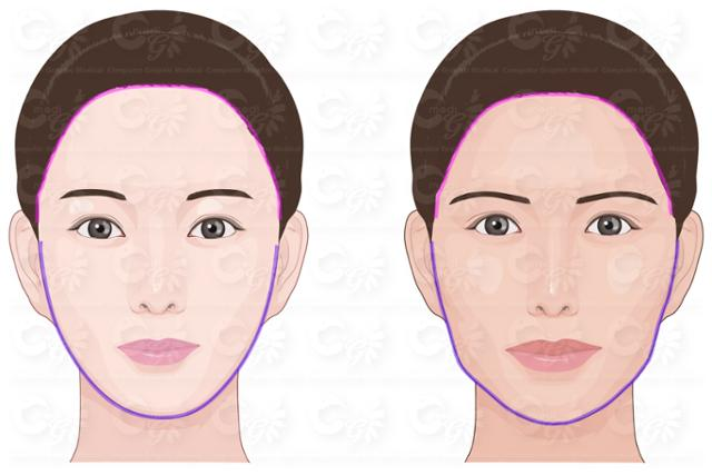 The study found that South Koreans prefer an oval face (L) with a wide forehead and small lips, while Paraguayans showed preference towards slightly angular face shape and big lips. (image: Catholic University of Korea Seoul St. Mary's Hospital)
